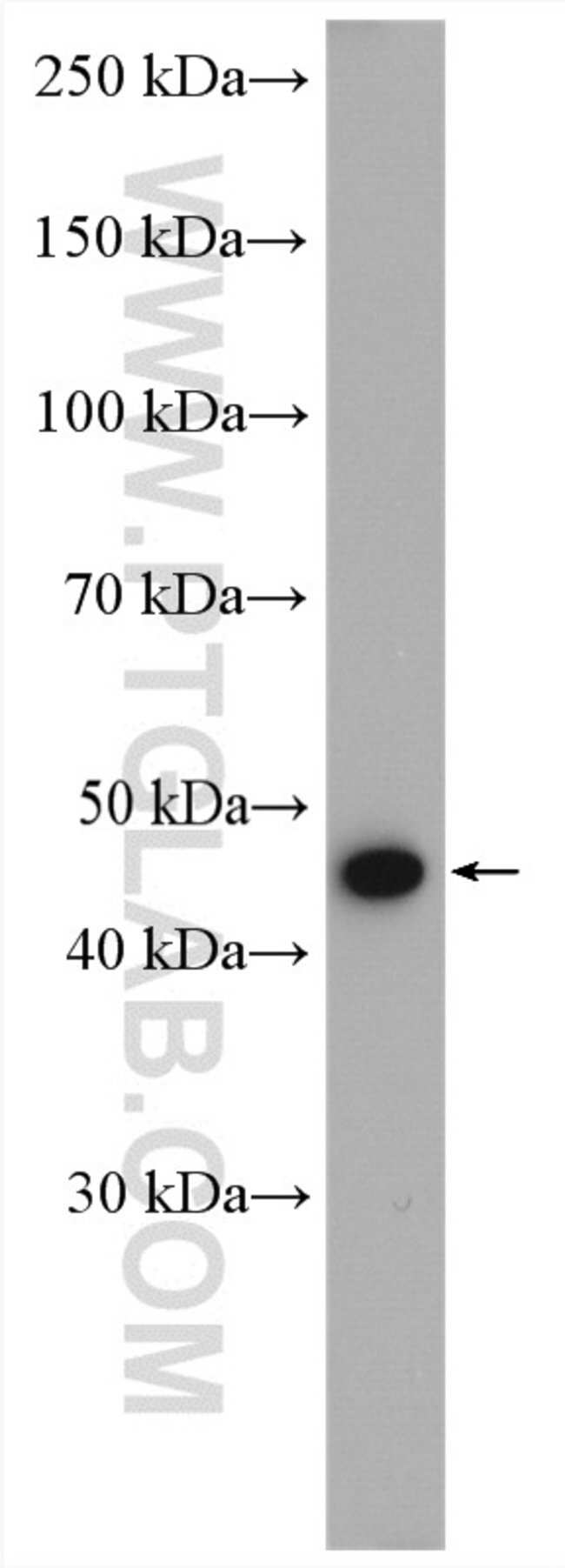 PSMC5 Rabbit anti-Human, Mouse, Rat, Polyclonal, Proteintech 20 μL; Unconjugated Produkte
