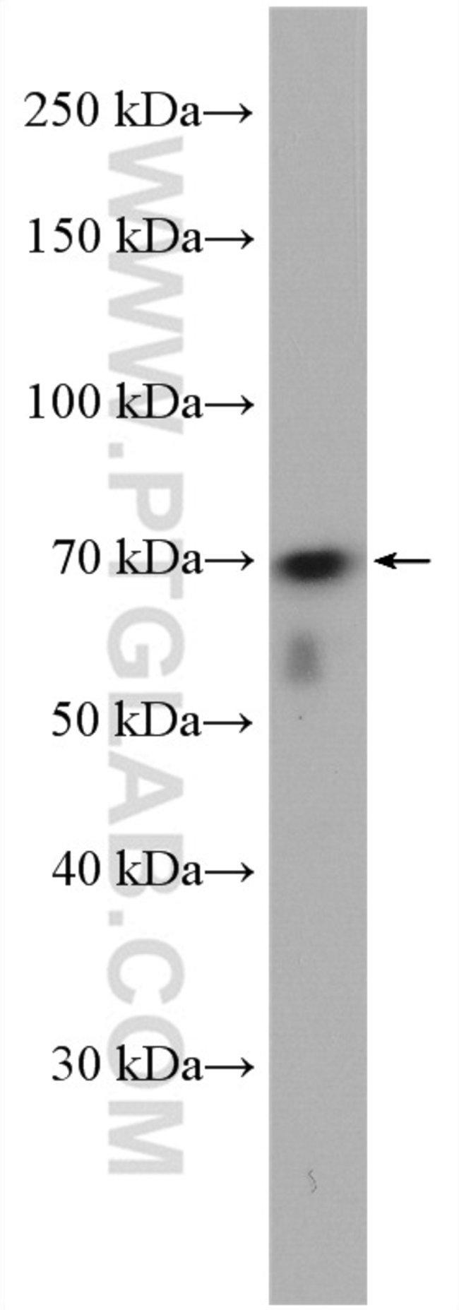 WRAP53 Rabbit anti-Human, Mouse, Rat, Polyclonal, Proteintech 20 μL; Unconjugated Produkte