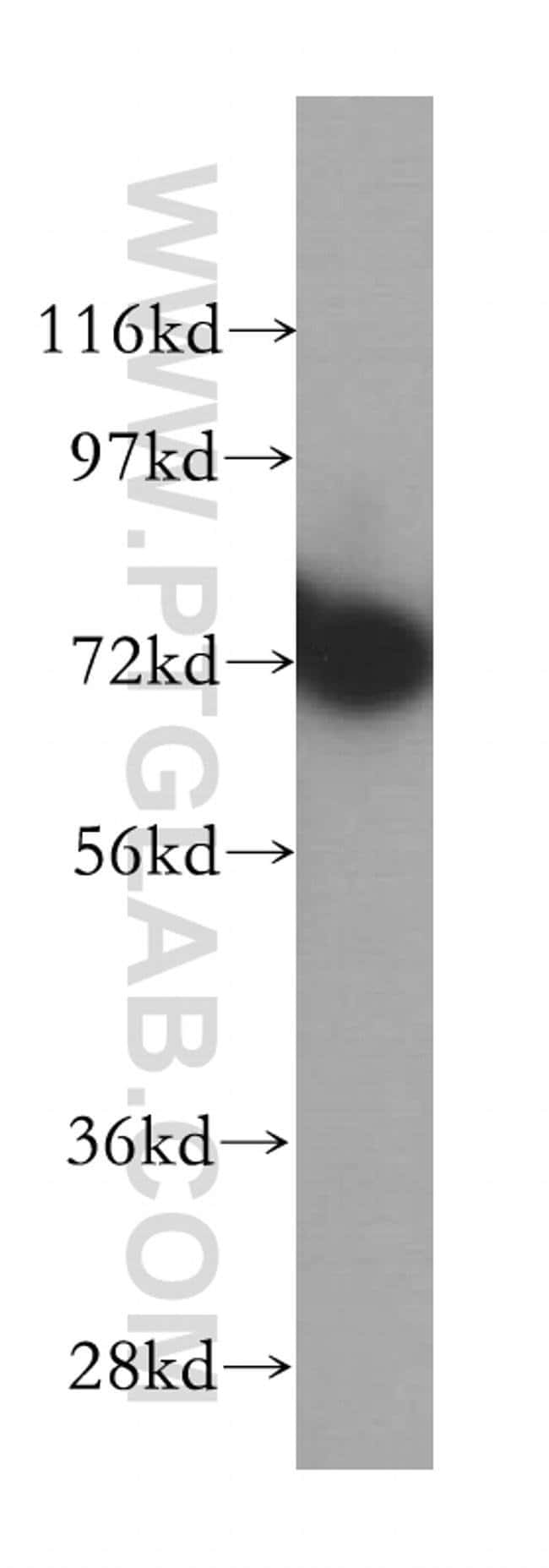 RNPEP Rabbit anti-Human, Mouse, Rat, Polyclonal, Proteintech 150 μL; Unconjugated Ver productos