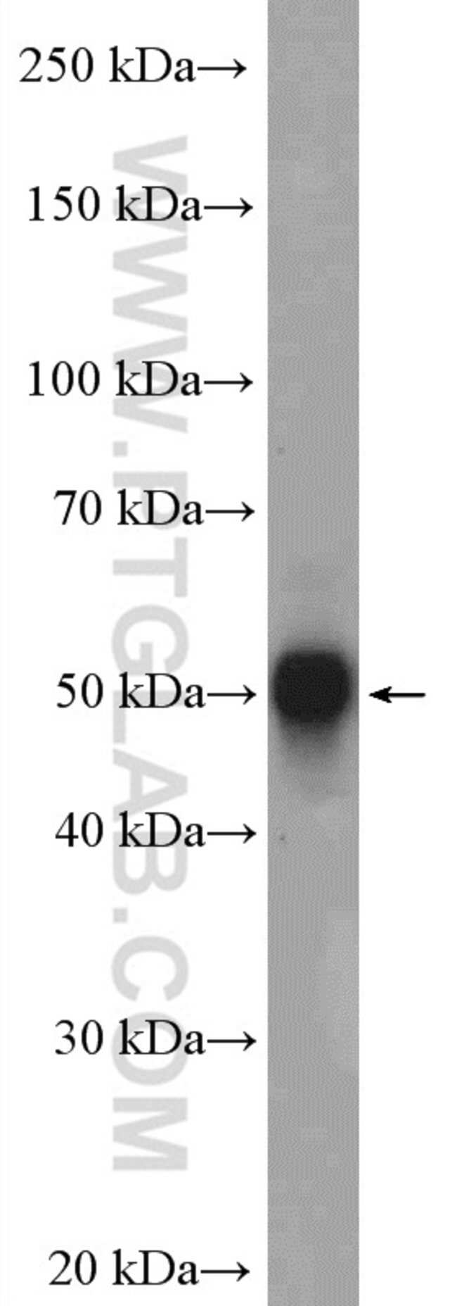 CAMKV Rabbit anti-Human, Mouse, Rat, Polyclonal, Proteintech 20 μL; Unconjugated Produkte