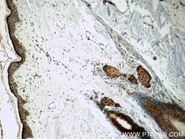SNRPD2 Rabbit anti-Human, Mouse, Rat, Polyclonal, Proteintech 20 μL; Unconjugated voir les résultats