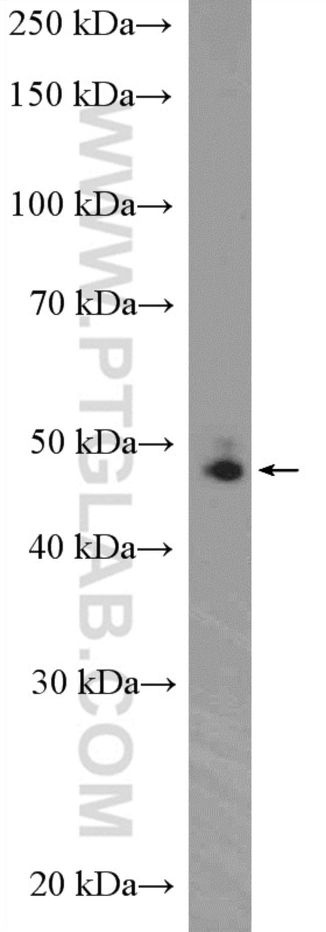 DDX39B Rabbit anti-Human, Mouse, Rat, Polyclonal, Proteintech 150 μL; Unconjugated Ver productos