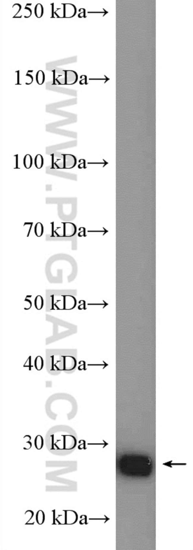 ARD1A Rabbit anti-Human, Mouse, Rat, Polyclonal, Proteintech 150 μL; Unconjugated Ver productos