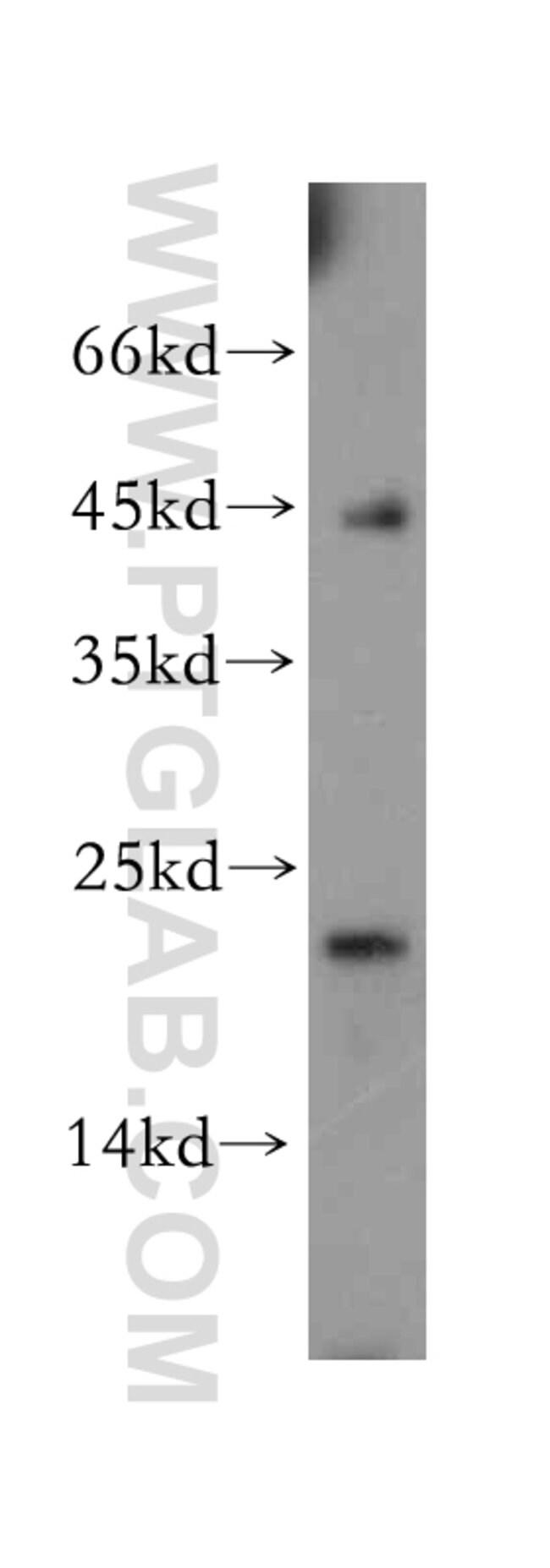 Hikeshi Rabbit anti-Human, Mouse, Rat, Polyclonal, Proteintech 20 μL; Unconjugated voir les résultats