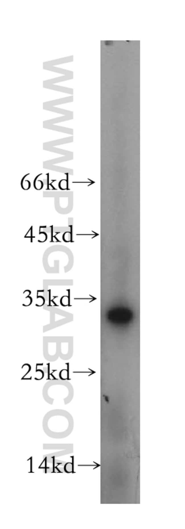 OBFC2B Rabbit anti-Human, Mouse, Rat, Polyclonal, Proteintech 150 μL; Unconjugated Ver productos