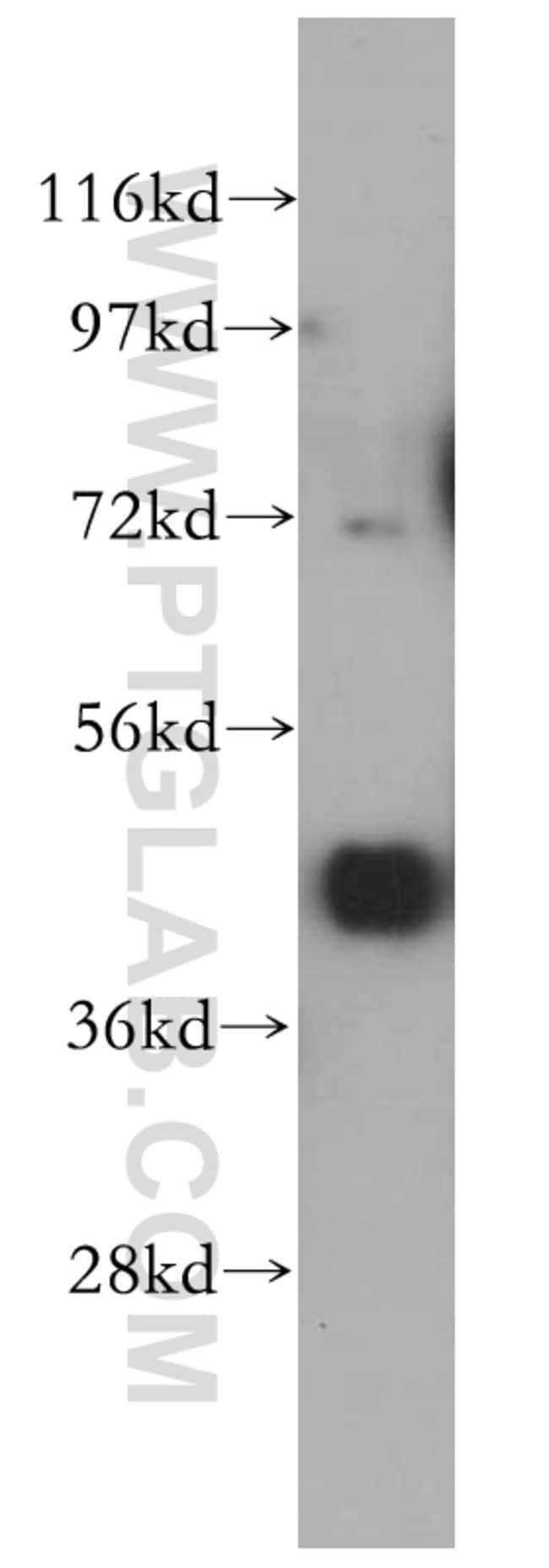 PCYT2 Rabbit anti-Human, Mouse, Rat, Polyclonal, Proteintech 20 μL; Unconjugated Produkte