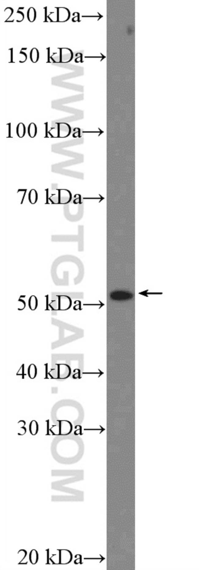 CXCR7 Rabbit anti-Human, Mouse, Rat, Polyclonal, Proteintech 20 μL; Unconjugated voir les résultats