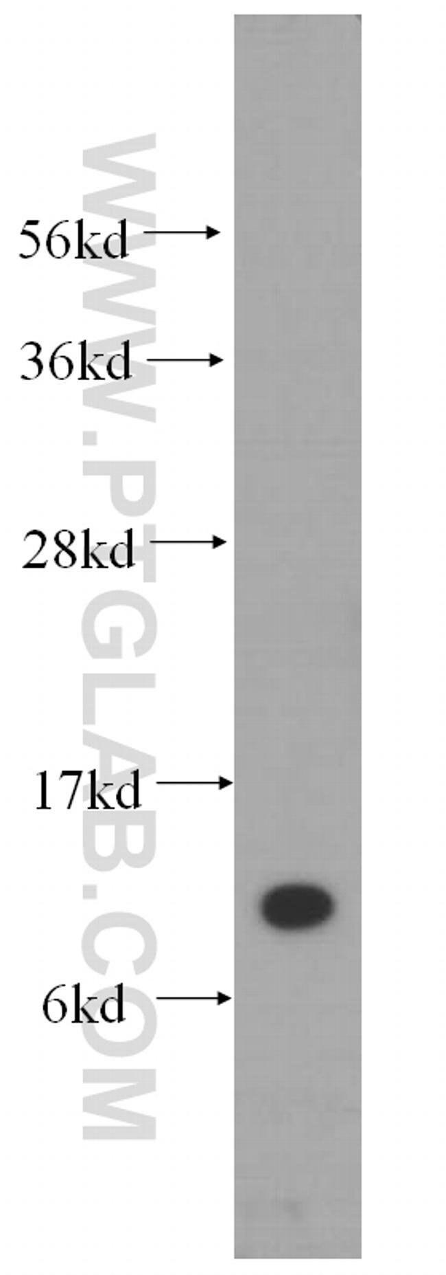 SEC61B Rabbit anti-Human, Mouse, Polyclonal, Proteintech 20 μL; Unconjugated voir les résultats