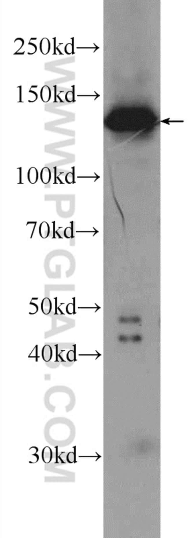 TBCD Rabbit anti-Human, Mouse, Rat, Polyclonal, Proteintech 150 μL; Unconjugated Ver productos