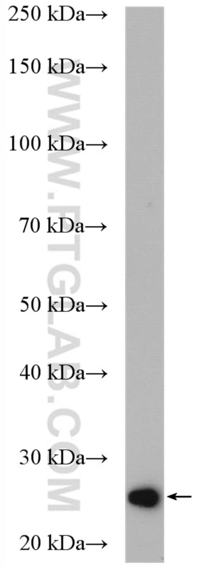SPCS2 Rabbit anti-Human, Mouse, Rat, Polyclonal, Proteintech 20 μL; Unconjugated voir les résultats