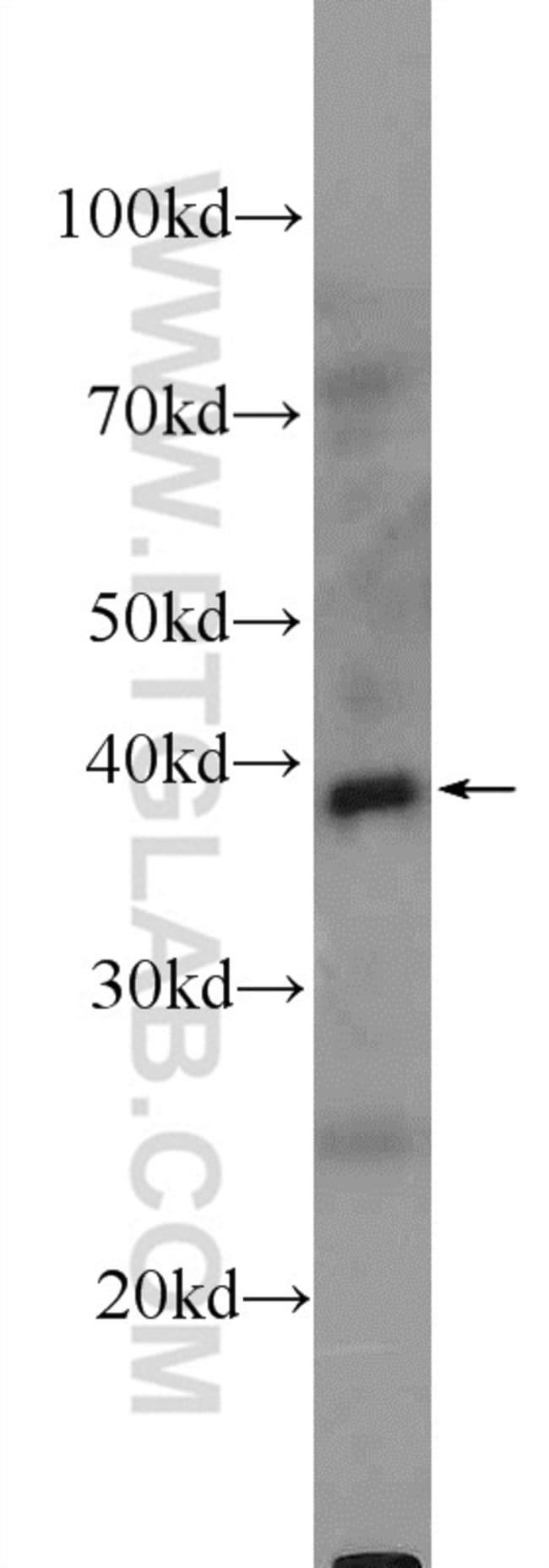 DHODH Rabbit anti-Human, Mouse, Rat, Polyclonal, Proteintech 20 μL; Unconjugated voir les résultats