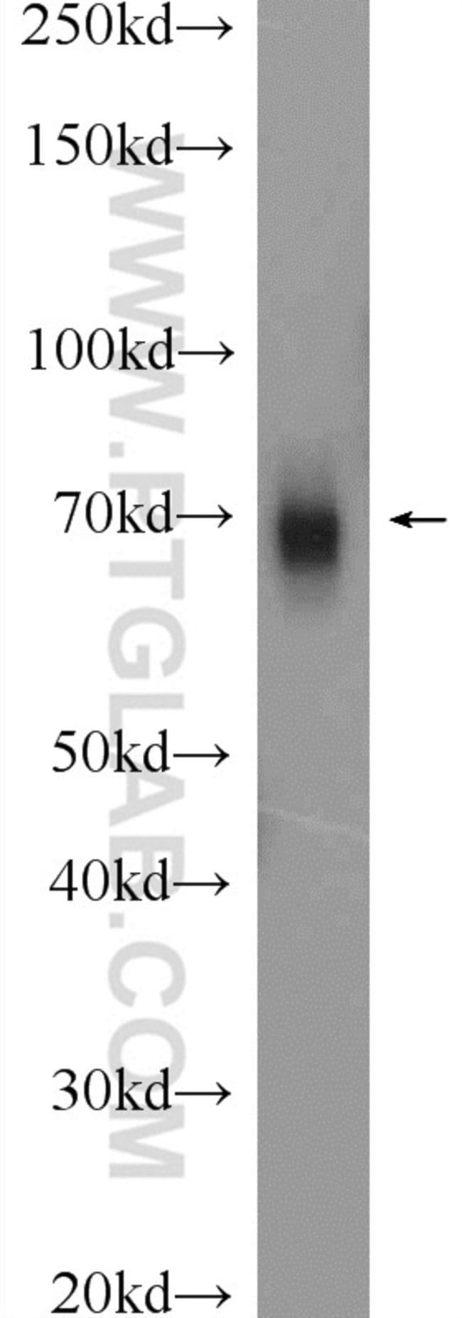 GRP75 Rabbit anti-Human, Mouse, Rat, Polyclonal, Proteintech 20 μL; Unconjugated Produkte
