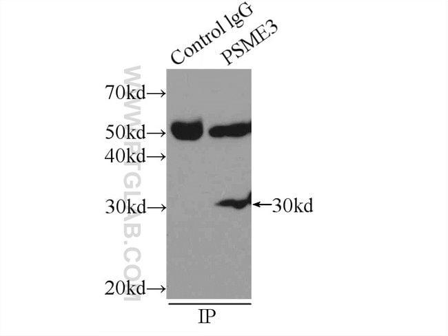 PSME3 Rabbit anti-Human, Mouse, Rat, Polyclonal, Proteintech 150 μL; Unconjugated Ver productos