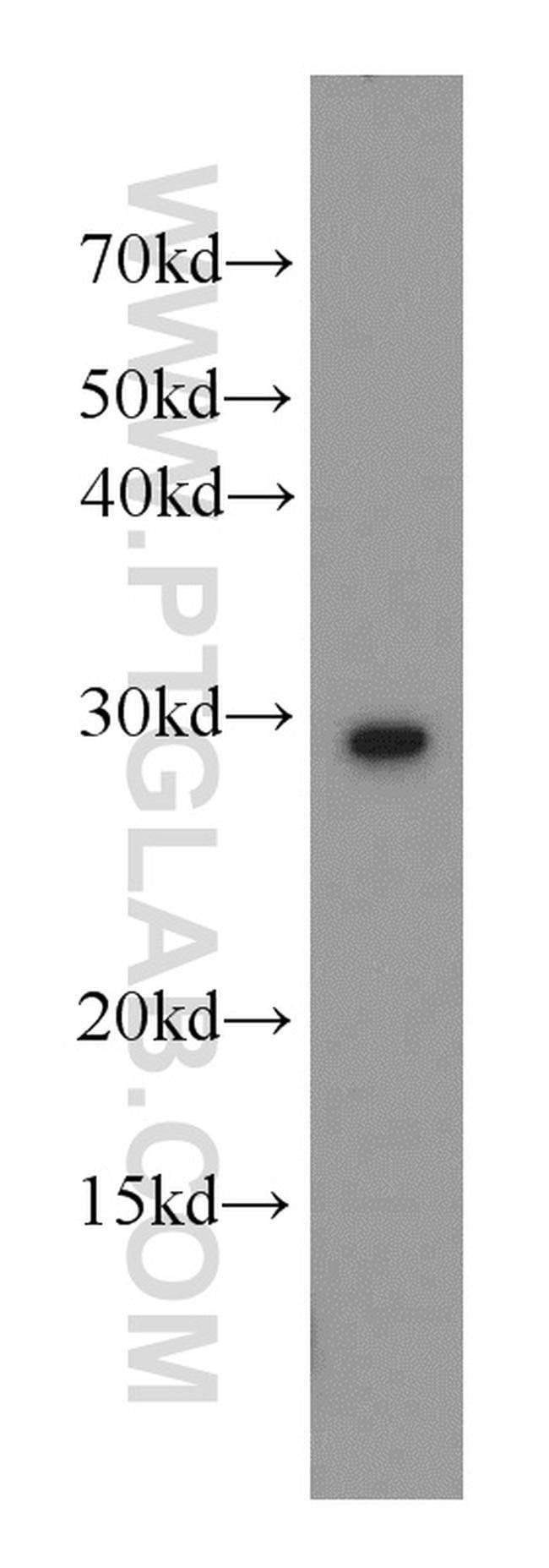 UROS Rabbit anti-Human, Mouse, Rat, Polyclonal, Proteintech 150 μL; Unconjugated Ver productos