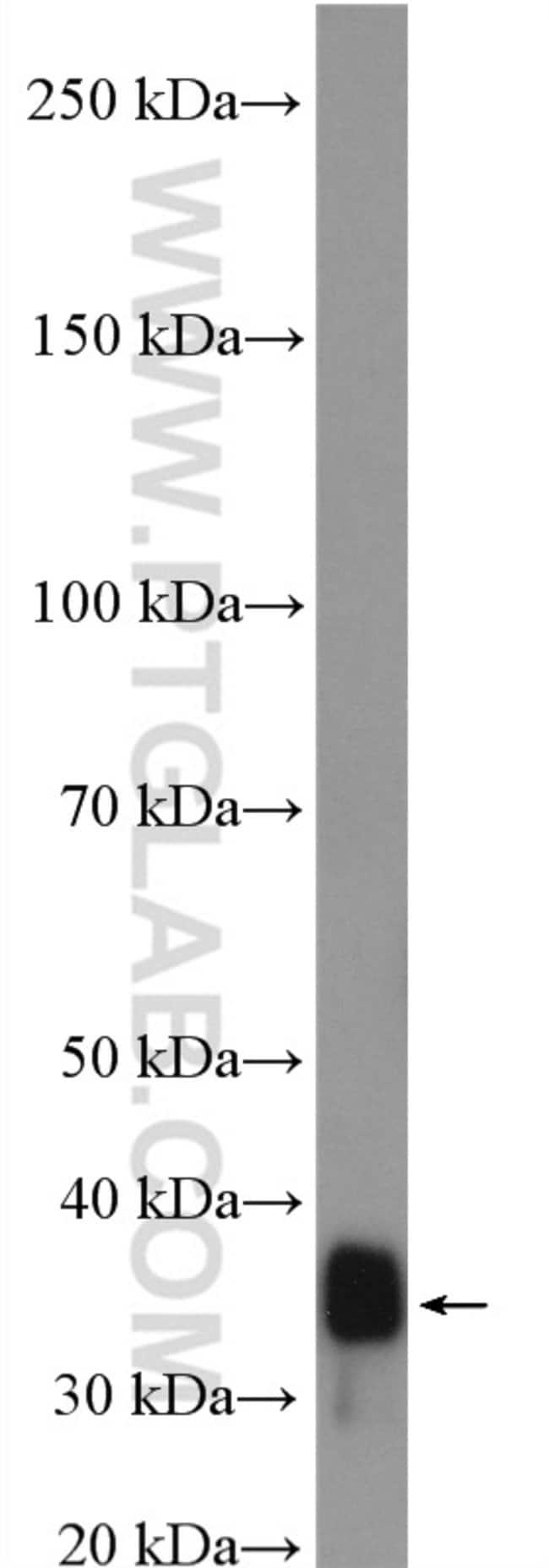 SUCLG1 Rabbit anti-Human, Mouse, Rat, Polyclonal, Proteintech 150 μL; Unconjugated Ver productos