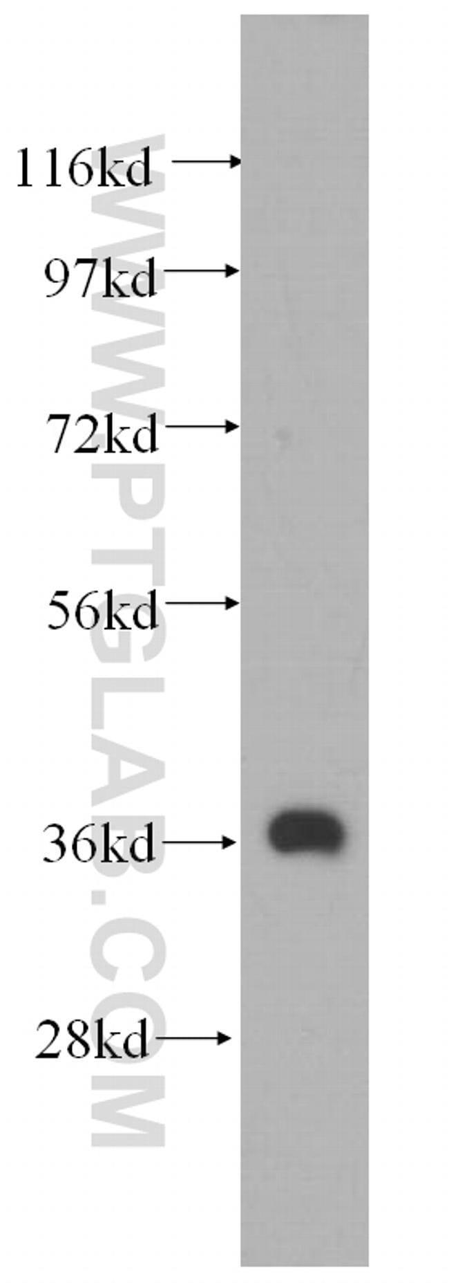 MECR Rabbit anti-Human, Mouse, Rat, Polyclonal, Proteintech 20 μL; Unconjugated Produkte