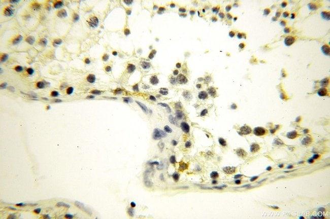GGPS1 Rabbit anti-Human, Mouse, Rat, Polyclonal, Proteintech 20 μL; Unconjugated voir les résultats