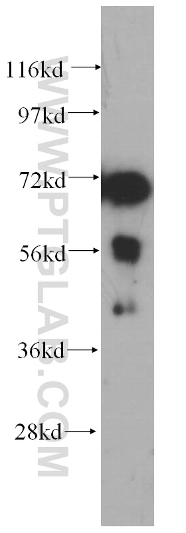 PABPC4 Rabbit anti-Human, Mouse, Rat, Polyclonal, Proteintech 20 μL; Unconjugated Produkte
