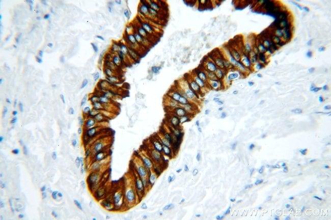 Cytokeratin 19 Rabbit anti-Human, Polyclonal, Proteintech 20 μL; Unconjugated Produkte