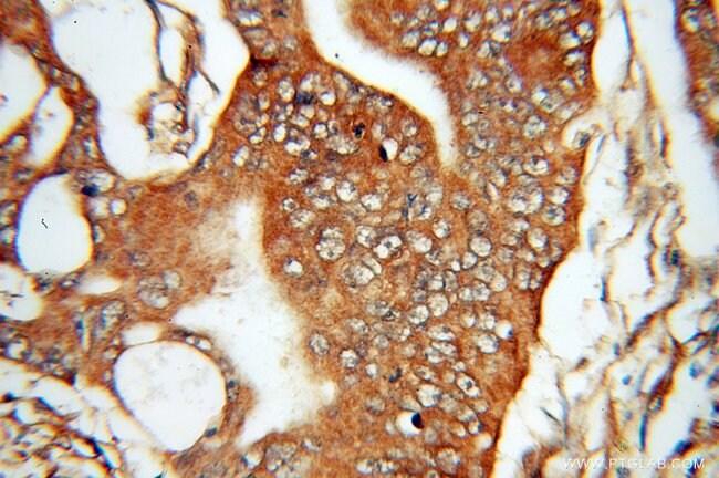 DDAH2 Rabbit anti-Human, Mouse, Rat, Polyclonal, Proteintech 20 μL; Unconjugated voir les résultats