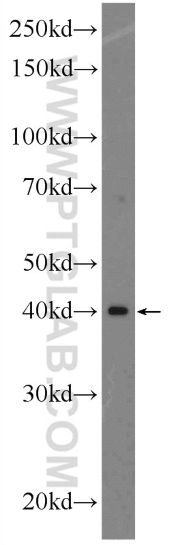 LEF1 Rabbit anti-Human, Mouse, Rat, Polyclonal, Proteintech 20 μL; Unconjugated Produkte