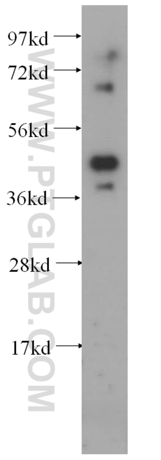 HNRNPF Rabbit anti-Human, Mouse, Rat, Polyclonal, Proteintech 150 μL; Unconjugated Ver productos