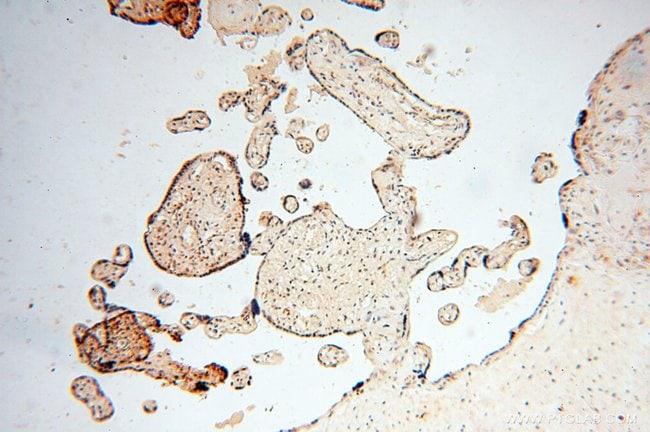 HIRIP3 Rabbit anti-Human, Mouse, Polyclonal, Proteintech 150 μL; Unconjugated Ver productos