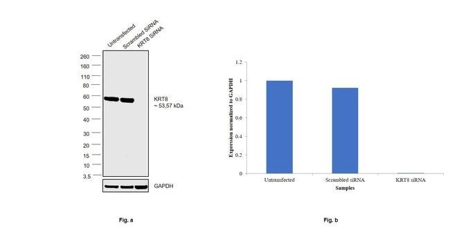Cytokeratin 8 Mouse anti-Human, Clone: LP3K, eBioscience Invitrogen 2 mg;