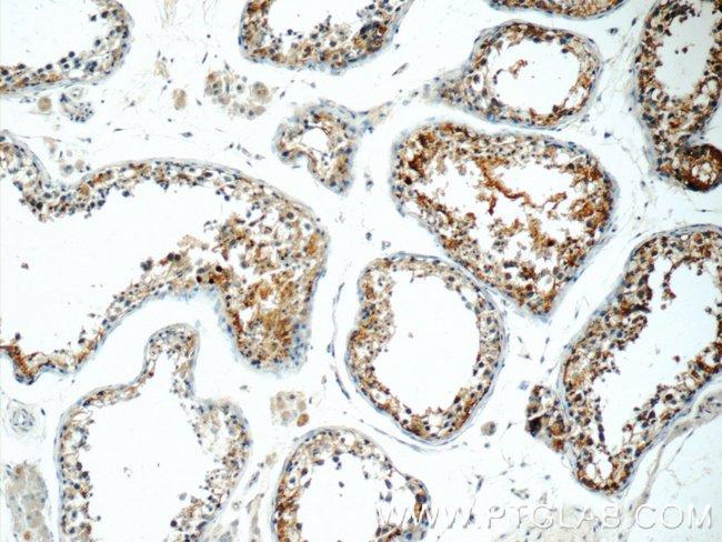 IFT27 Rabbit anti-Human, Polyclonal, Proteintech 20 μL; Unconjugated Produkte