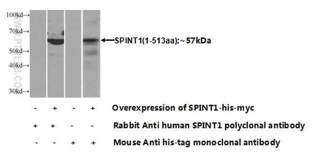 HAI-1 Rabbit anti-Human, Mouse, Polyclonal, Proteintech 20 μL; Unconjugated Produkte