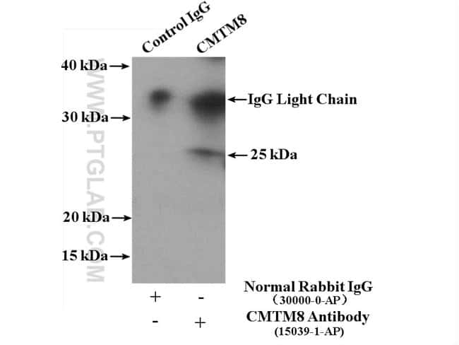 CMTM8 Rabbit anti-Human, Mouse, Rat, Polyclonal, Proteintech 150 μL; Unconjugated Ver productos