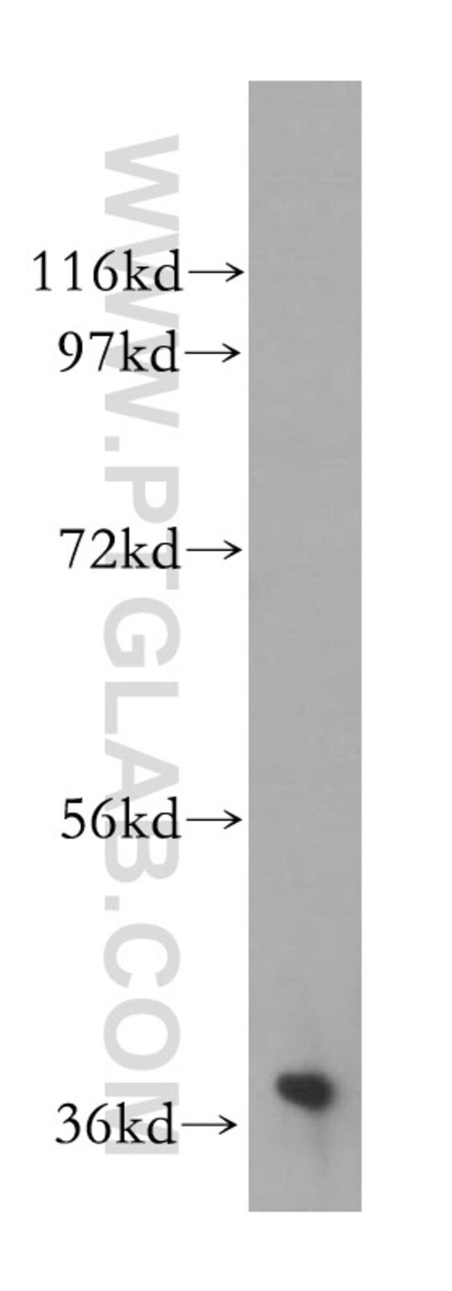 NAGK Rabbit anti-Human, Mouse, Rat, Polyclonal, Proteintech 20 μL; Unconjugated voir les résultats