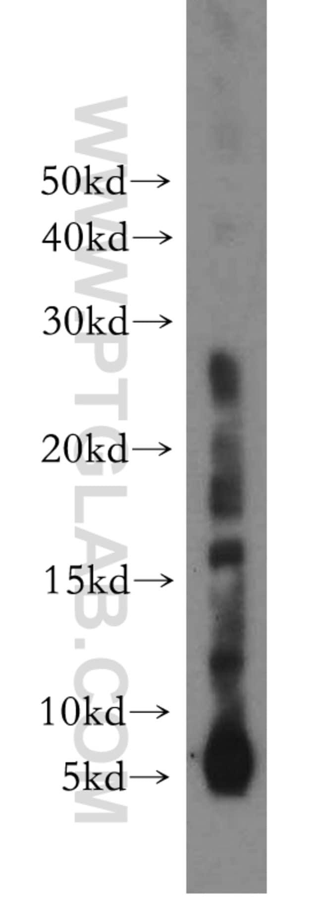 RPL38 Rabbit anti-Human, Mouse, Rat, Polyclonal, Proteintech 20 μL; Unconjugated Produkte