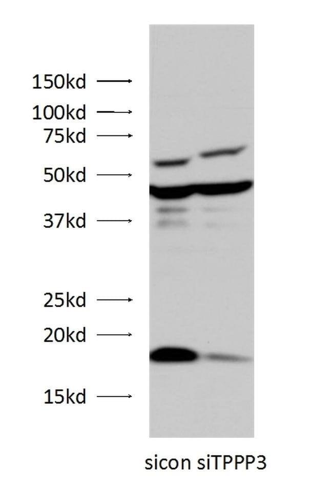 TPPP3 Rabbit anti-Human, Mouse, Rat, Polyclonal, Proteintech 150 μL; Unconjugated Ver productos