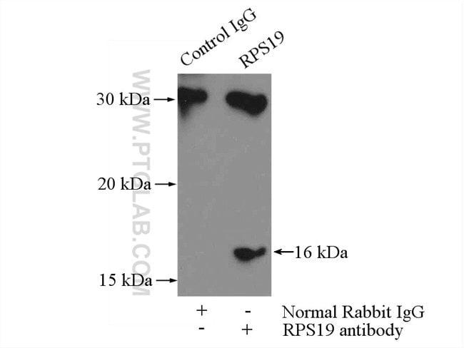 RPS19 Rabbit anti-Human, Mouse, Rat, Polyclonal, Proteintech 150 μL; Unconjugated Ver productos