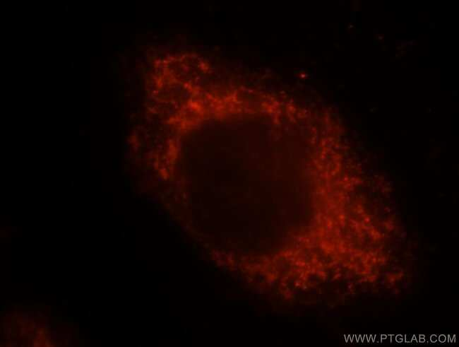ALDH3A2 Rabbit anti-Human, Mouse, Rat, Polyclonal, Proteintech 20 μL; Unconjugated Ver productos