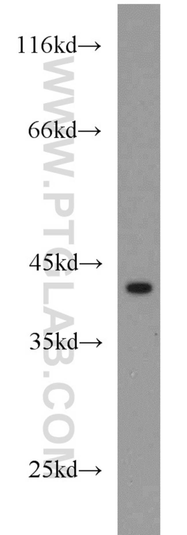 IL10RB Rabbit anti-Human, Mouse, Polyclonal, Proteintech 20 μL; Unconjugated Ver productos