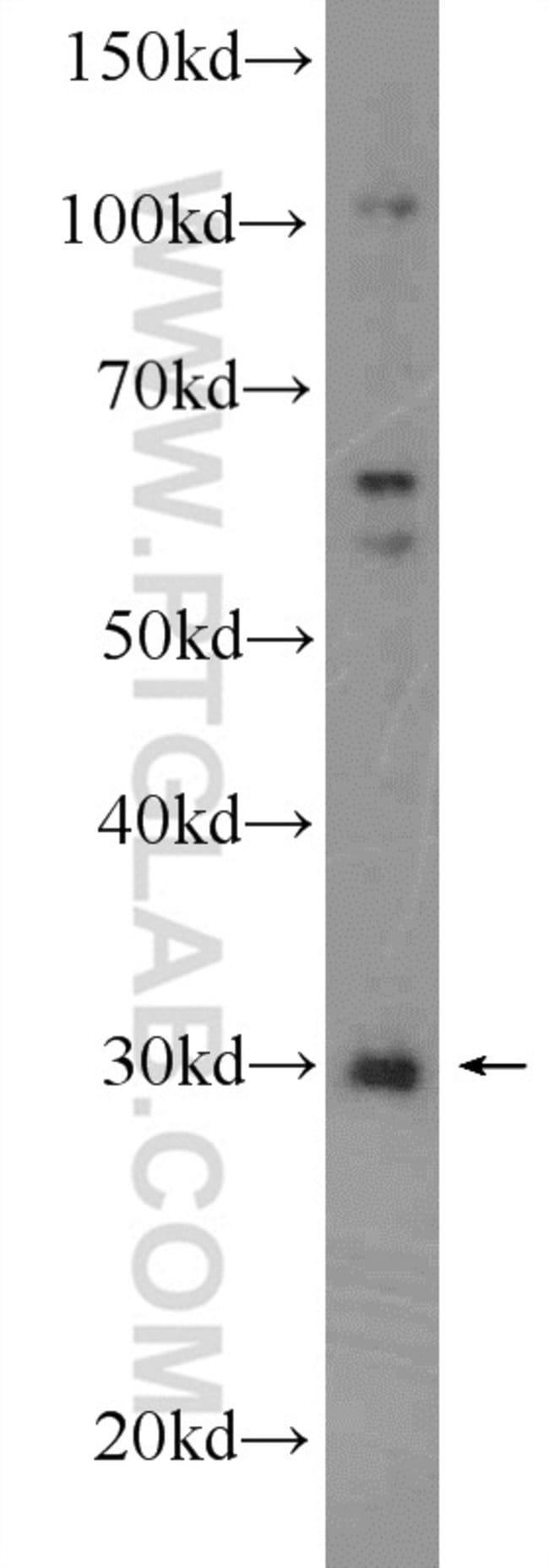 SIRT5 Rabbit anti-Human, Mouse, Rat, Polyclonal, Proteintech 150 μL; Unconjugated Produkte