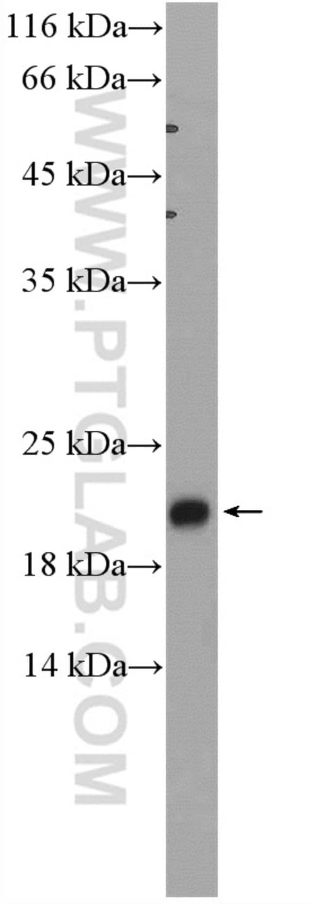 ADI1 Rabbit anti-Human, Mouse, Rat, Polyclonal, Proteintech 150 μL; Unconjugated Produkte