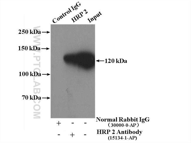 HRP 2 Rabbit anti-Human, Mouse, Rat, Polyclonal, Proteintech 150 μL; Unconjugated voir les résultats
