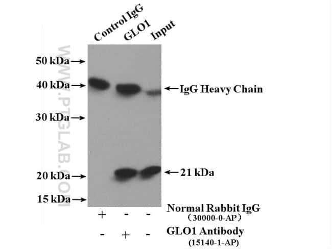 GLO1 Rabbit anti-Human, Mouse, Rat, Polyclonal, Proteintech 150 μL; Unconjugated voir les résultats