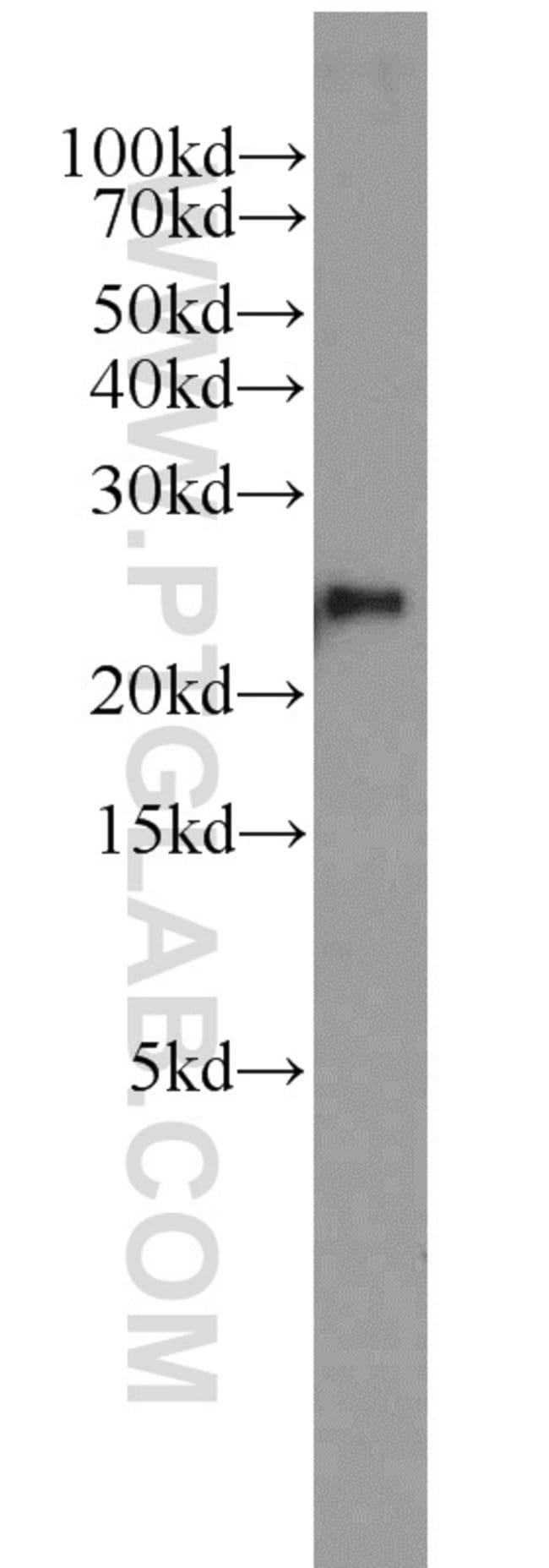 PSMB2 Rabbit anti-Human, Mouse, Rat, Polyclonal, Proteintech 20 μL; Unconjugated Ver productos