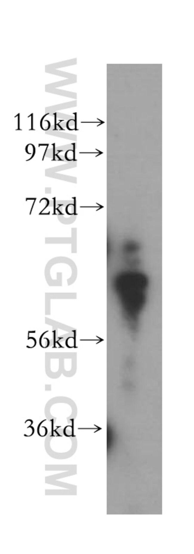 PGM1 Rabbit anti-Human, Mouse, Rat, Polyclonal, Proteintech 20 μL; Unconjugated Ver productos