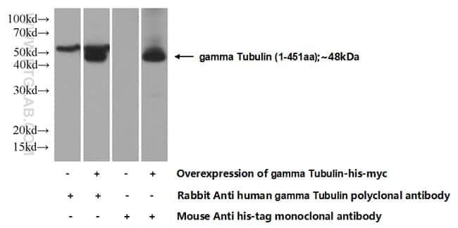 gamma Tubulin Rabbit anti-Canine, Human, Mouse, Rat, Polyclonal, Proteintech 150 μL; Unconjugated voir les résultats