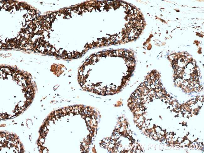 CD98 Rabbit anti-Human, Polyclonal, Proteintech 150 μL; Unconjugated Produkte