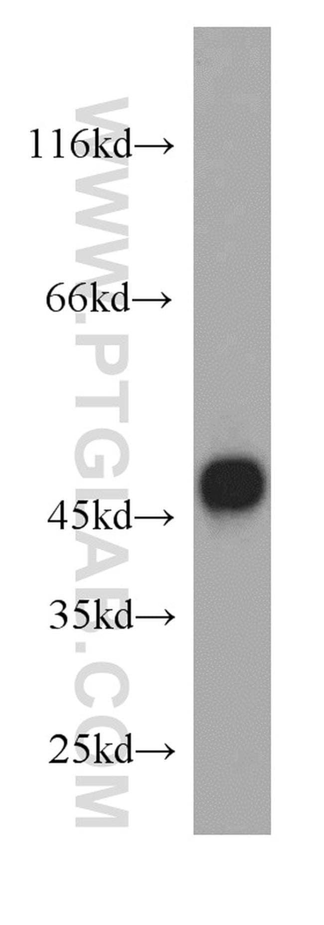FADS3 Rabbit anti-Human, Mouse, Rat, Polyclonal, Proteintech 20 μL; Unconjugated Ver productos