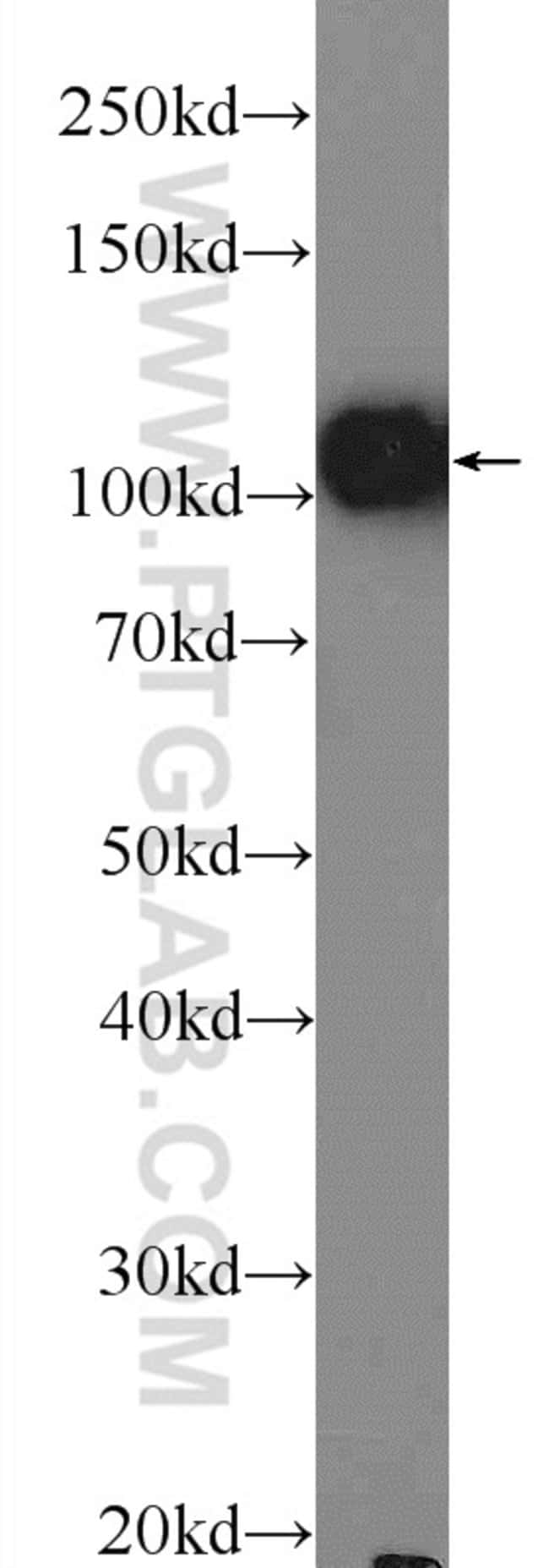 OGDH Rabbit anti-Human, Mouse, Rat, Polyclonal, Proteintech 150 μL; Unconjugated Produkte
