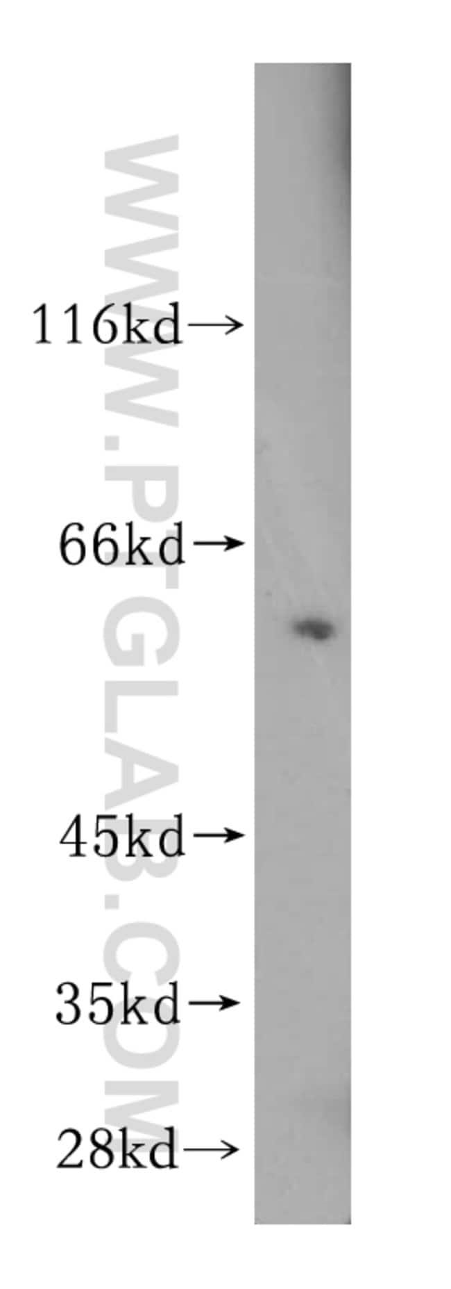 STIP1 Rabbit anti-Human, Mouse, Rat, Polyclonal, Proteintech 150 μL; Unconjugated Produkte