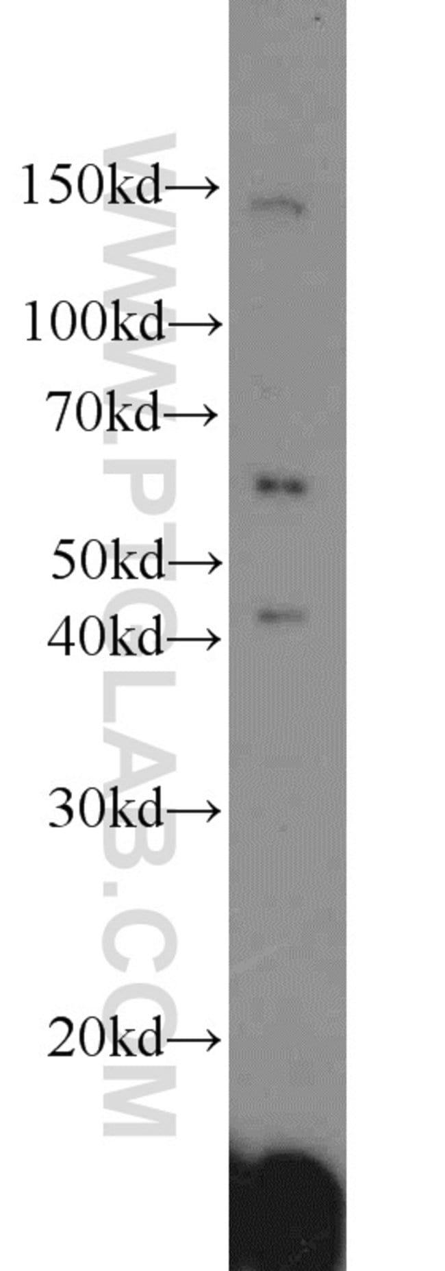 ACP2 Rabbit anti-Human, Mouse, Rat, Polyclonal, Proteintech 150 μL; Unconjugated Produkte