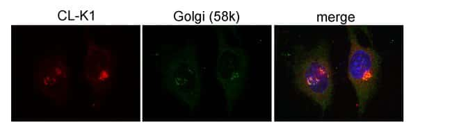 COLEC11 Rabbit anti-Human, Mouse, Rat, Zebrafish, Polyclonal, Proteintech 150 μL; Unconjugated Produkte
